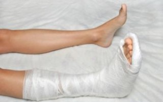 Что означает сломанная нога во сне — возможные толкования по соннику