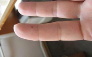Значение родинки на указательном пальце левой и правой руки для мужчин и женщин