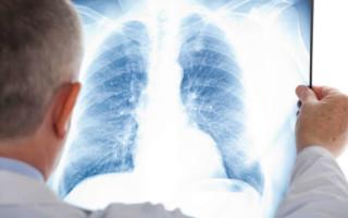 Заговоры от пневмонии (воспаления легких) – особенности и правила использования
