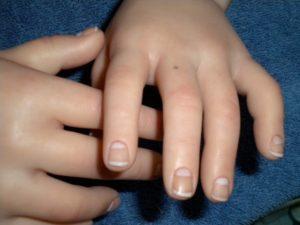 Что значит родинка на среднем пальце правой или левой руки, ее влияние на судьбу