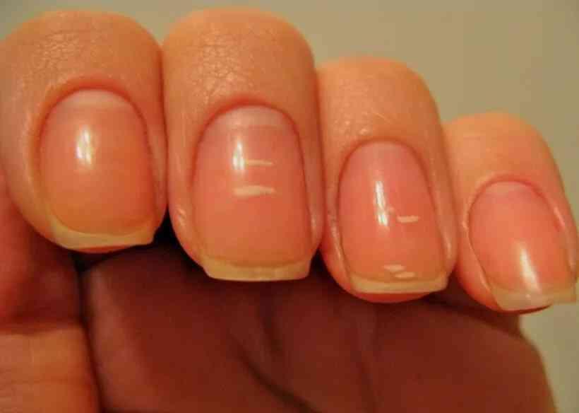 Белые пятна на ногтях в Хиромантии