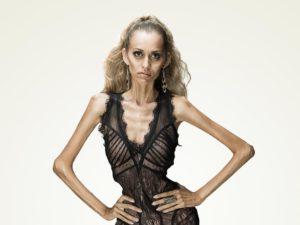 anoreksia 300x225 - Как узнать есть ли во мне бесы