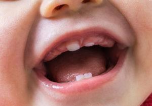 Выпал первый молочный зуб у ребенка