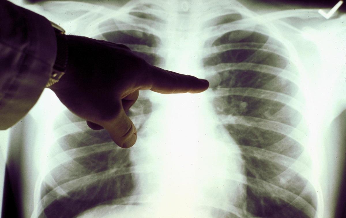 Заговоры от пневмонии (воспаления легких) - особенности и правила использования