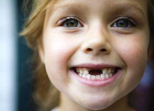 Куда девать выпавший зуб взрослого человека